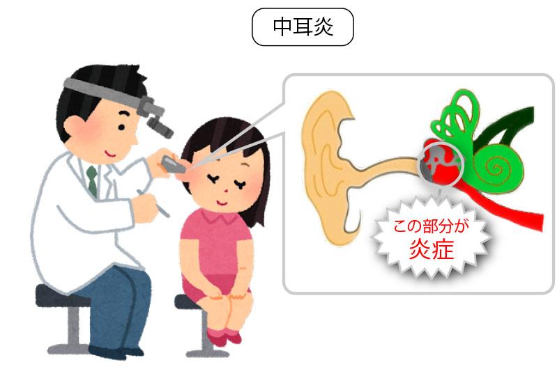中耳炎耳の仕組み