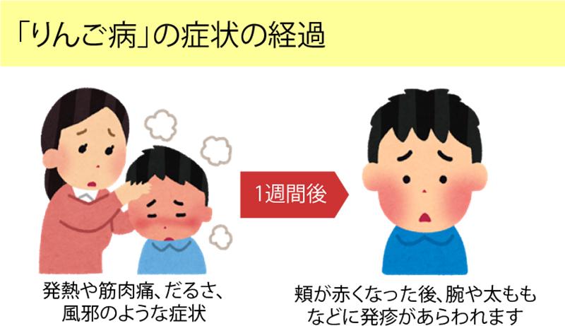 りんご病の症状と経過