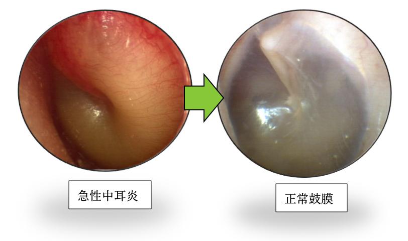 中耳炎・鼓膜